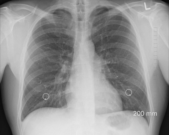 Ezért marad el a tüdőszűrés